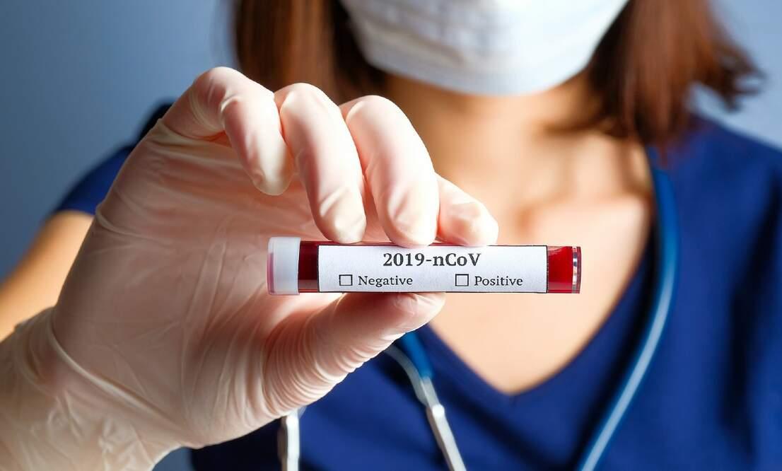 Coronavirus update (March 30): 11.750 confirmed cases