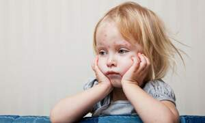 Children infected with measles in The Hague: pressure upped on vaccination law