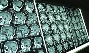Dutch computer programme predicts future illnesses