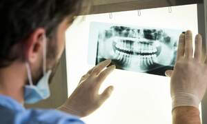 Poor dental health can damage your heart: Dutch researcher