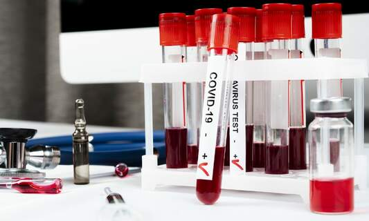 Many more coronavirus tests were available than were used