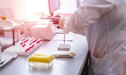 Netherlands offered 5000 extra tests per day by German laboratory