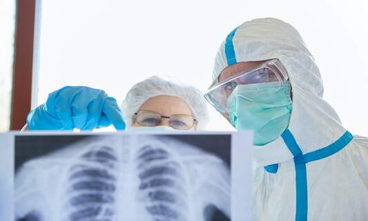 Dutch companies develop method of diagnosing COVID-19 using x-rays